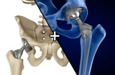 Hip replacement implant installed in the pelvis bone 3D Model